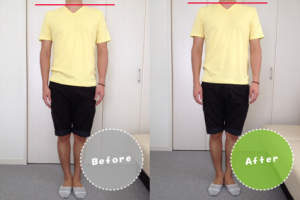 施術前と施術後の比較写真/肩の高さの違い