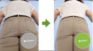施術前と施術後の比較写真/骨盤の歪み/産後の骨盤矯正