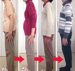 施術経過の写真/猫背/姿勢改善