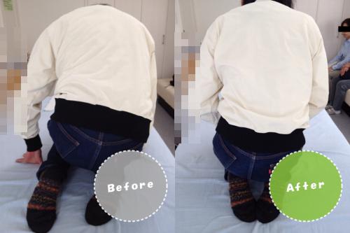膝痛/変形性膝関節症/整体ビフォーアフター