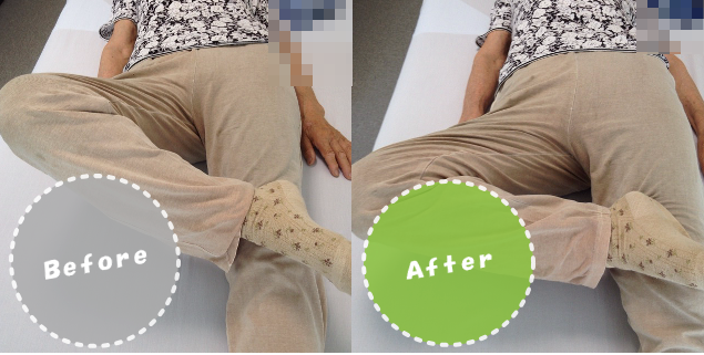 股関節痛/整体ビフォーアフター