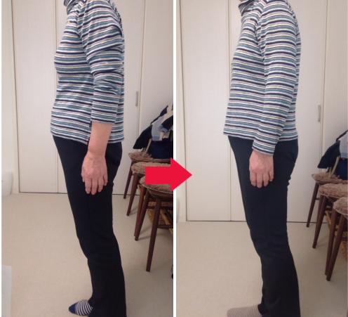 施術前と施術後の比較写真/お腹の凹み/背中の丸み