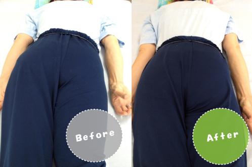 整体ビフォーアフター/股関節痛/先天性股関節脱臼