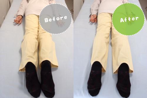 整体ビフォーアフター/膝痛/変形性膝関節症