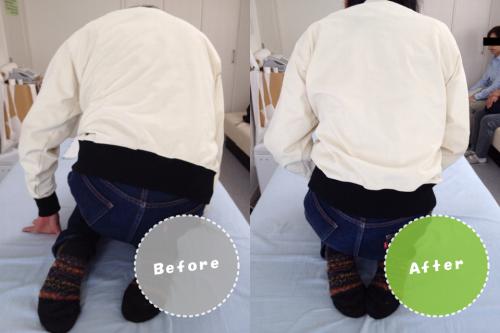 膝痛/変形性膝関節症/整体イメージ画像