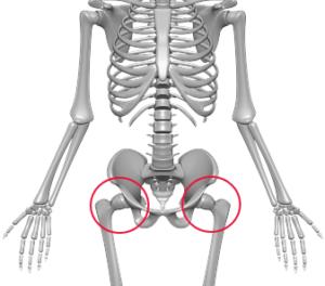 股関節痛/先天性股関節脱臼/イメージ画像
