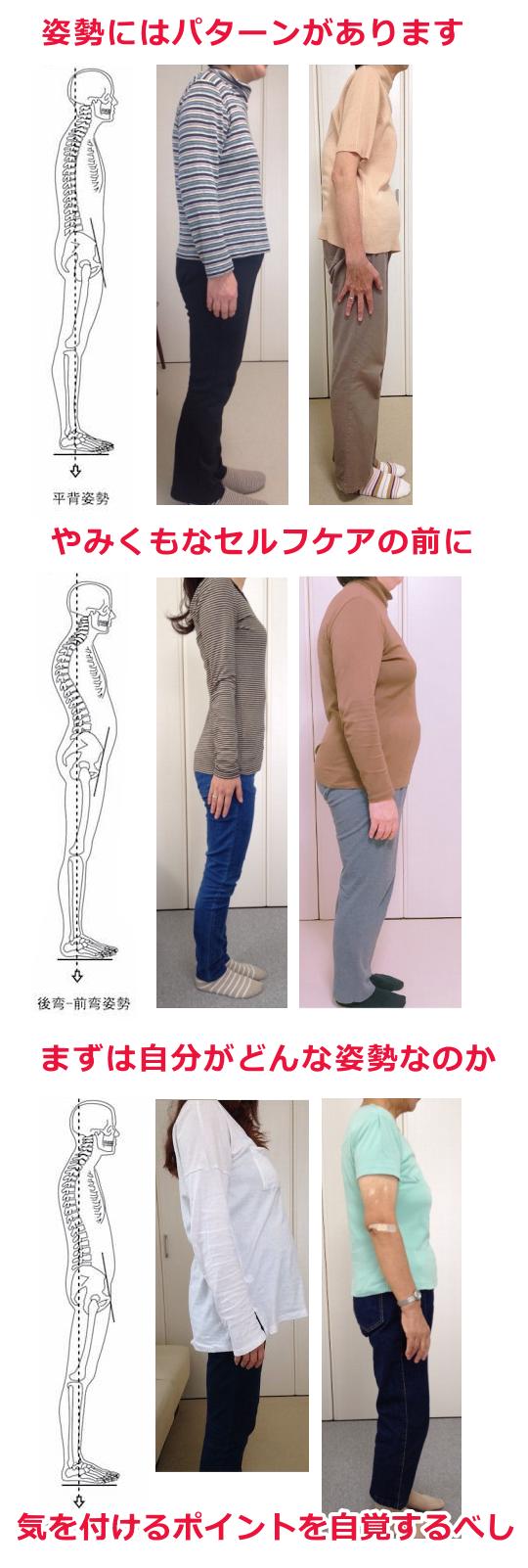 姿勢矯正/猫背パターン/猫背矯正の例
