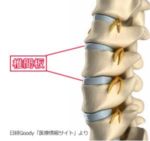 腰椎/椎間板イメージ画像/椎間板性腰痛