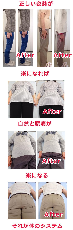 骨盤矯正で腰痛を改善できる